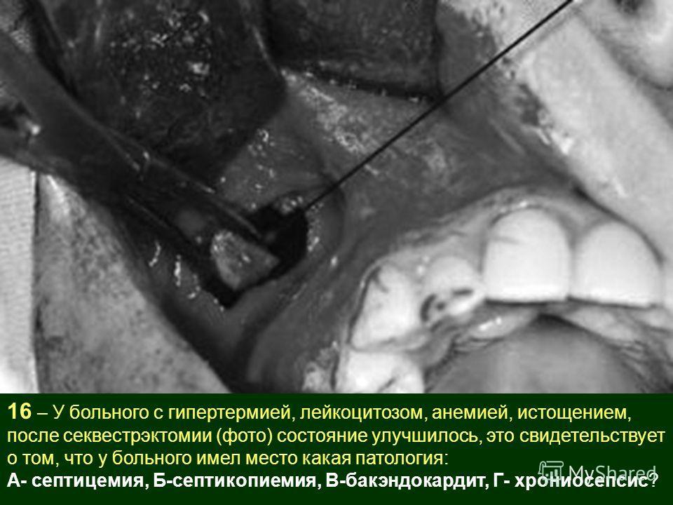 16 – У больного с гипертермией, лейкоцитозом, анемией, истощением, после секвестрэктомии (фото) состояние улучшилось, это свидетельствует о том, что у больного имел место какая патология: А- септицемия, Б-септикопиемия, В-бакэндокардит, Г- хрониосепс