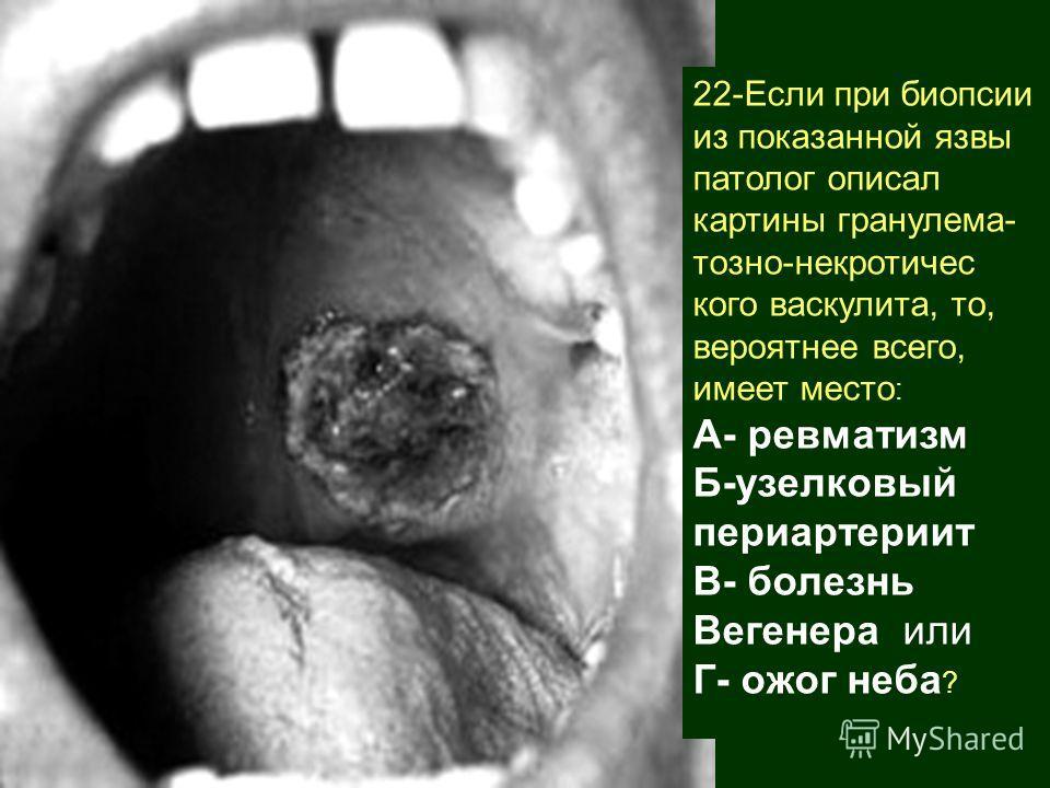 22-Если при биопсии из показанной язвы патолог описал картины гранулематоз нонекротического васкулита, то, вероятнее всего, имеет место : А- ревматизм Б-узелковый периартериит В- болезнь Вегенера или Г- ожог неба ?