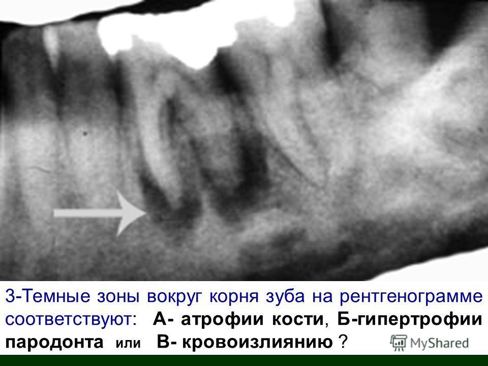 3-Темные зоны вокруг корня зуба на рентгенограмме соответствуют: А- атрофии кости, Б-гипертрофии пародонта или В- кровоизлиянию ?