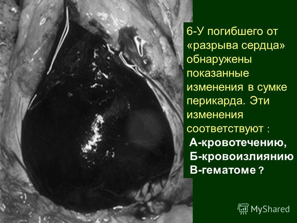 6-У погибшего от «разрыва сердца» обнаружены показанные изменения в сумке перикарда. Эти изменения соответствуют : А-кровотечению, Б-кровоизлиянию В-гематоме ?