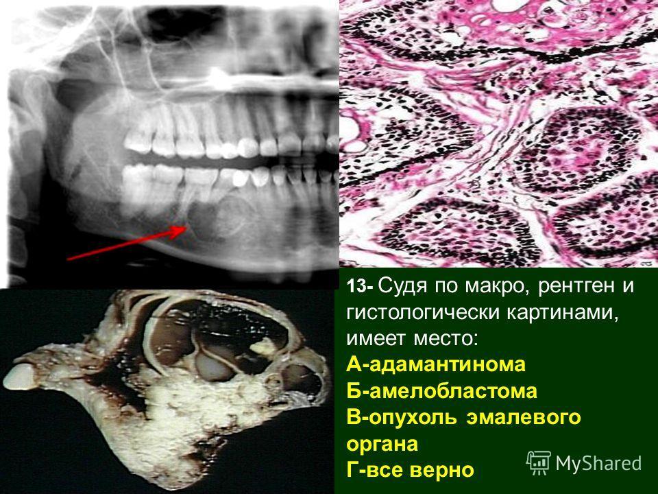 13- Судя по макро, рентген и гистологически картинами, имеет место: А-адамантинома Б-амелобластома В-опухоль эмалевого органа Г-все верно