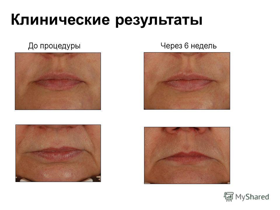 Клинические результаты До процедуры Через 6 недель