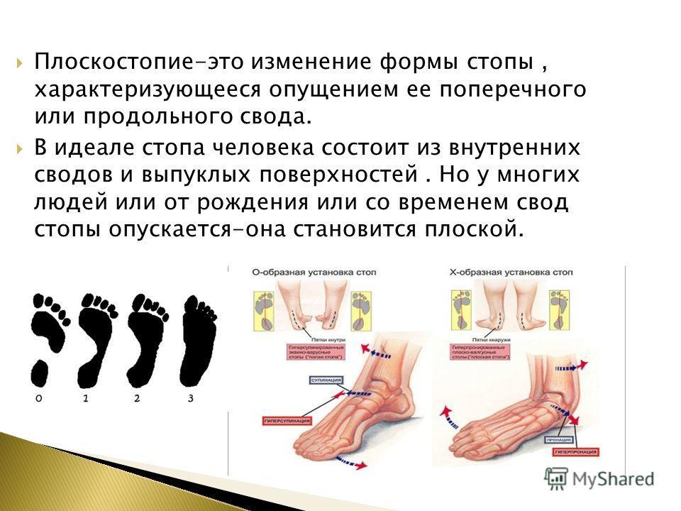 Плоскостопие-это изменение формы стопы, характеризующееся опущением ее поперечного или продольного свода. В идеале стопа человека состоит из внутренних сводов и выпуклых поверхностей. Но у многих людей или от рождения или со временем свод стопы опуск
