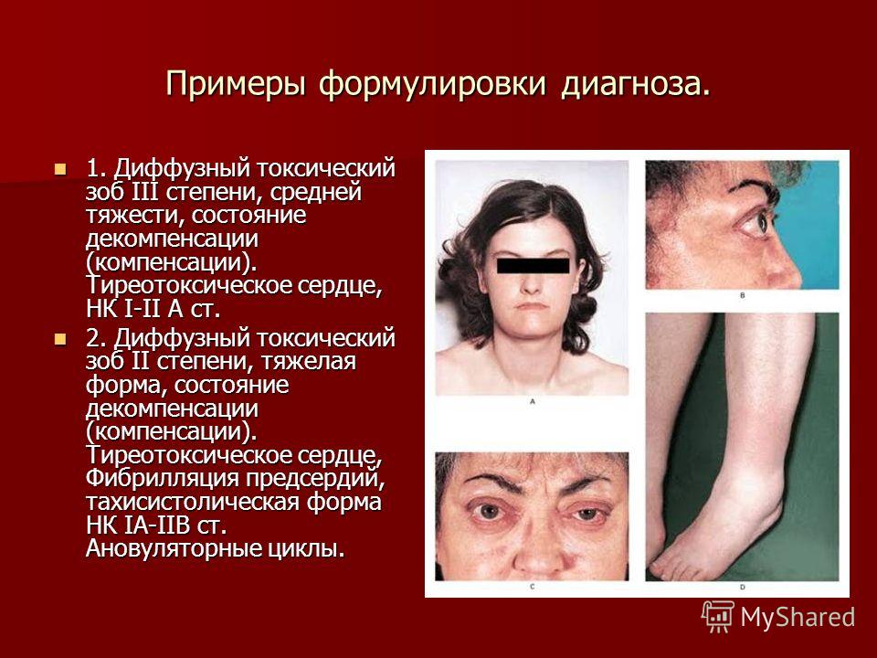 Зоб Диффузный Тиреотоксический фото
