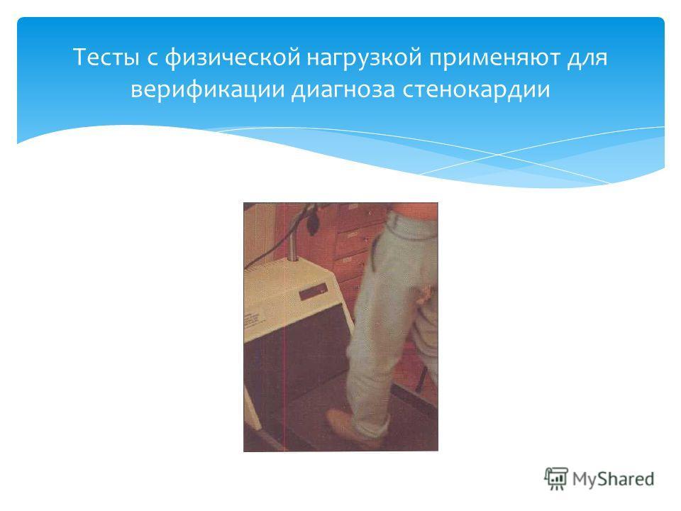 Тесты с физической нагрузкой применяют для верификации диагноза стенокардии