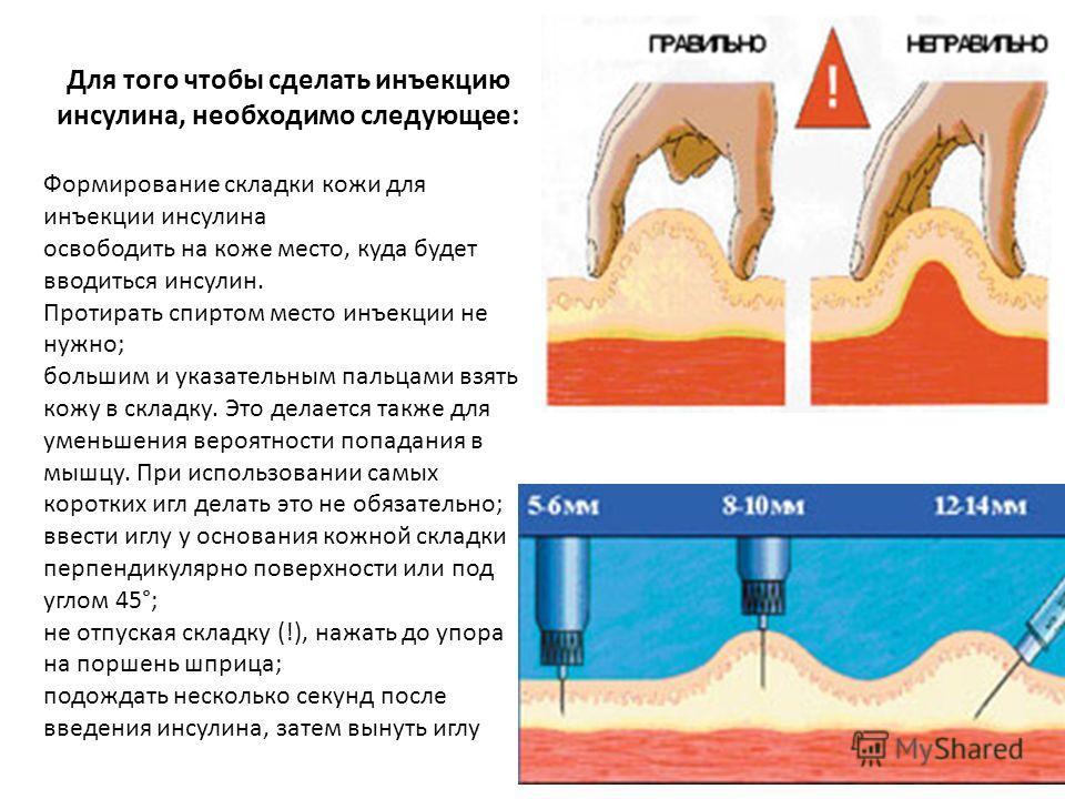 Для того чтобы сделать инъекцию инсулина, необходимо следующее: Формирование складки кожи для инъекции инсулина освободить на коже место, куда будет вводиться инсулин. Протирать спиртом место инъекции не нужно; большим и указательным пальцами взять к