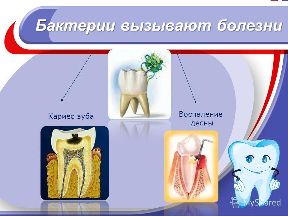 Бактерии вызывают болезни Кариес зуба Воспаление десны