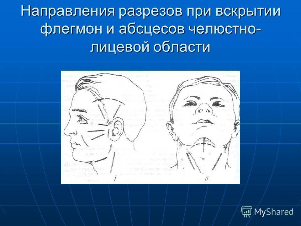 Направления разрезов при вскрытии флегмон и абсцесов челюстно- лицевой области