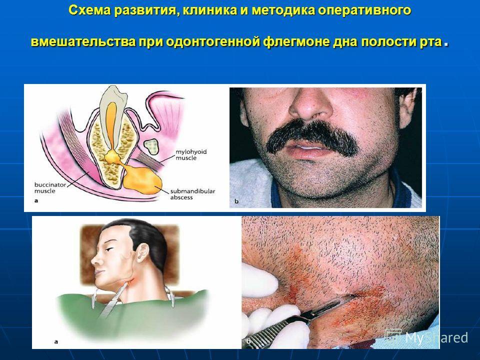 Схема развития, клиника и методика оперативного вмешательства при одонтогенной флегмоне дна полости рта.