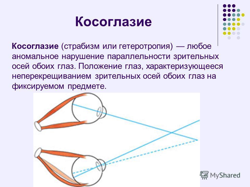 Косоглазие Косоглазие (страбизм или гетеротропия) любое аномальное нарушение параллельности зрительных осей обоих глаз. Положение глаз, характеризующееся неперекрещиванием зрительных осей обоих глаз на фиксируемом предмете.