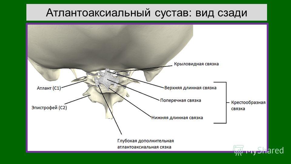 Атлантоаксиальный сустав: вид сзади