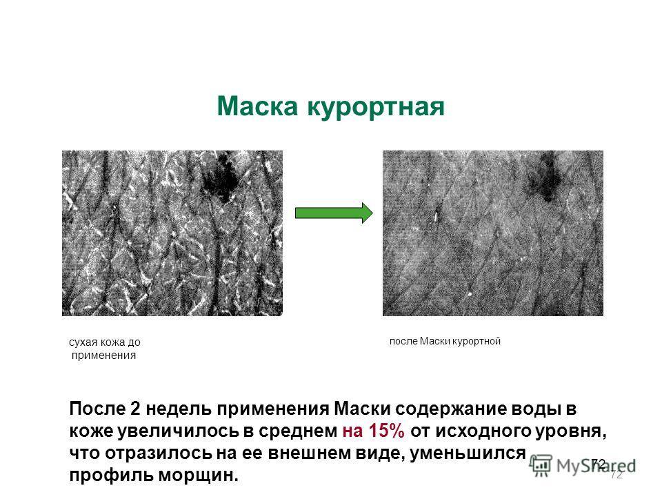 72 Маска курортная После 2 недель применения Маски содержание воды в коже увеличилось в среднем на 15% от исходного уровня, что отразилось на ее внешнем виде, уменьшился профиль морщин. сухая кожа до применения после Маски курортной