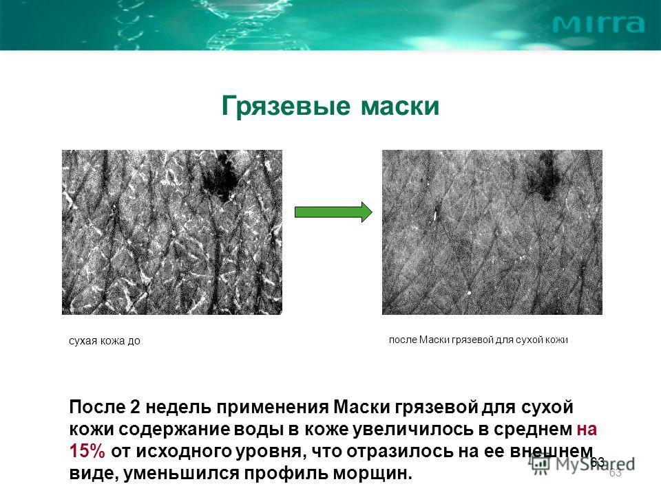 63 Грязевые маски После 2 недель применения Маски грязевой для сухой кожи содержание воды в коже увеличилось в среднем на 15% от исходного уровня, что отразилось на ее внешнем виде, уменьшился профиль морщин. сухая кожа до после Маски грязевой для су