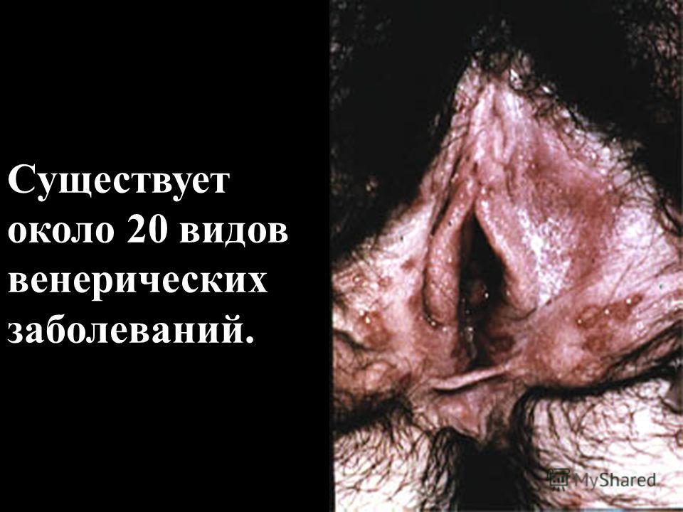 Существует около 20 видов венерических заболеваний.