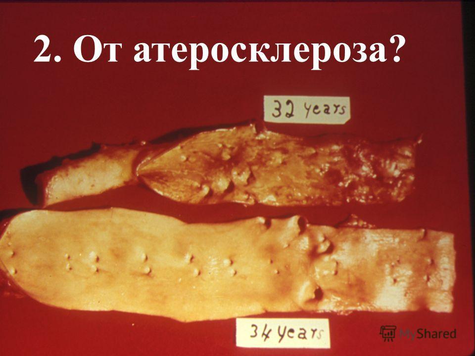 2. От атеросклероза?