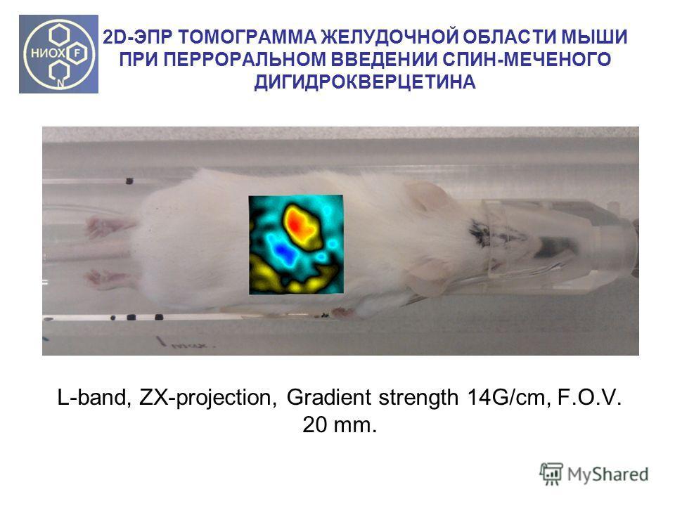 2D-ЭПР ТОМОГРАММА ЖЕЛУДОЧНОЙ ОБЛАСТИ МЫШИ ПРИ ПЕРРОРАЛЬНОМ ВВЕДЕНИИ СПИН-МЕЧЕНОГО ДИГИДРОКВЕРЦЕТИНА L-band, ZX-projection, Gradient strength 14G/cm, F.O.V. 20 mm.