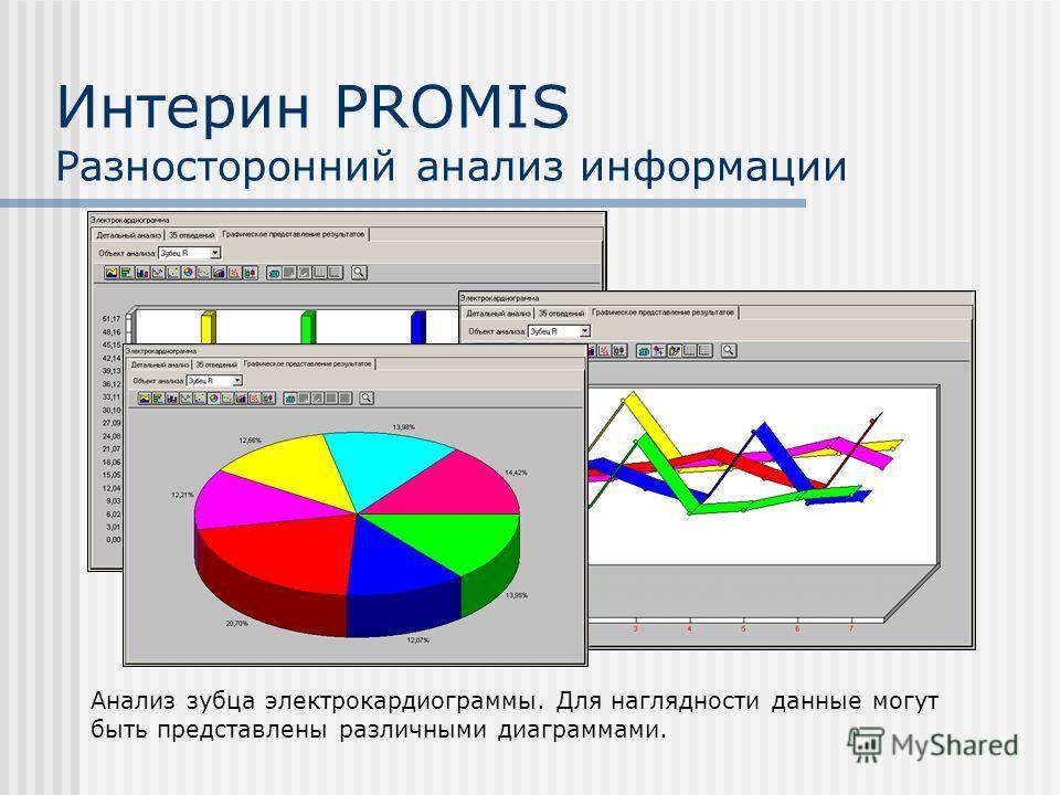Интерин PROMIS Разносторонний анализ информации Анализ зубца электрокардиограммы. Для наглядности данные могут быть представлены различными диаграммами.