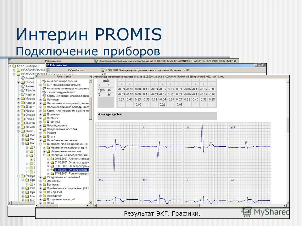 Просмотр результата на Рабочем столе Назначение исследования на Рабочем столе Результат ЭКГ. Графики. Интерин PROMIS Подключение приборов