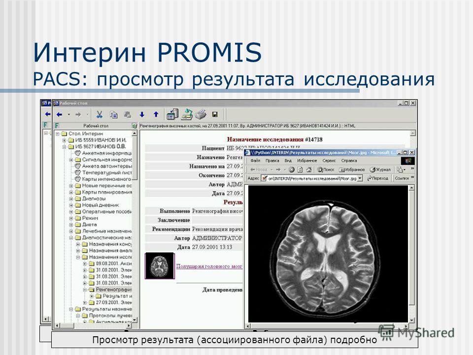 Интерин PROMIS PACS: просмотр результата исследования Результат исследования в Рабочем столе Просмотр результата (ассоциированного файла) подробно