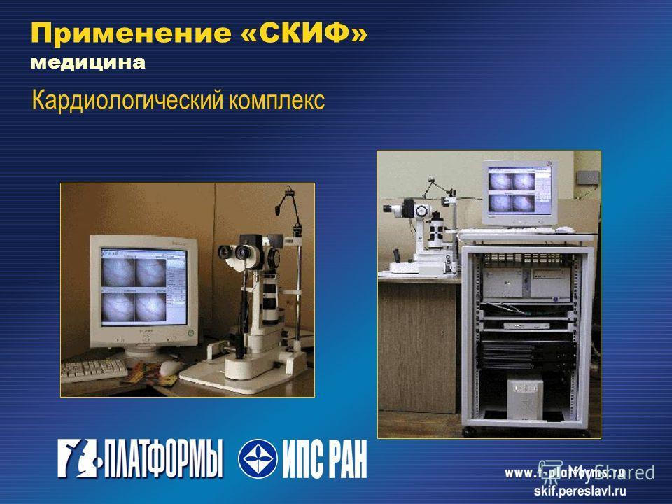 Применение «СКИФ» медицина Кардиологический комплекс