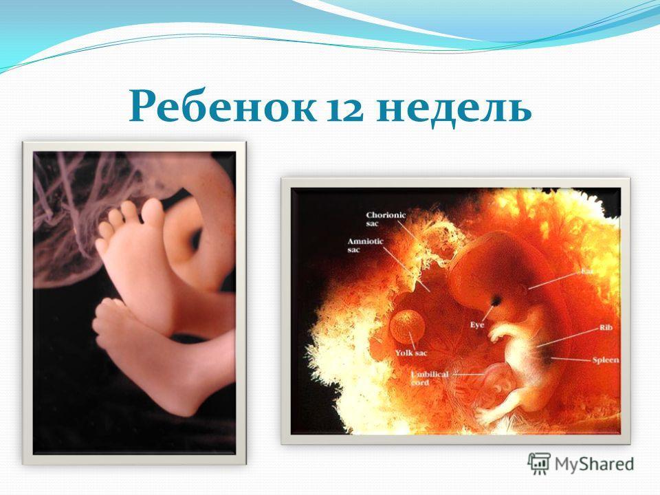 Ребенок 12 недель