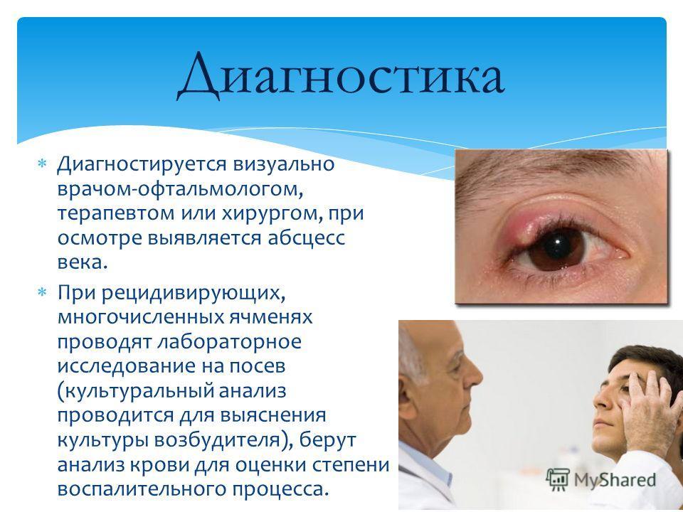 Диагностируется визуально врачом-офтальмологом, терапевтом или хирургом, при осмотре выявляется абсцесс века. При рецидивирующих, многочисленных ячменях проводят лабораторное исследование на посев (культуральный анализ проводится для выяснения культу