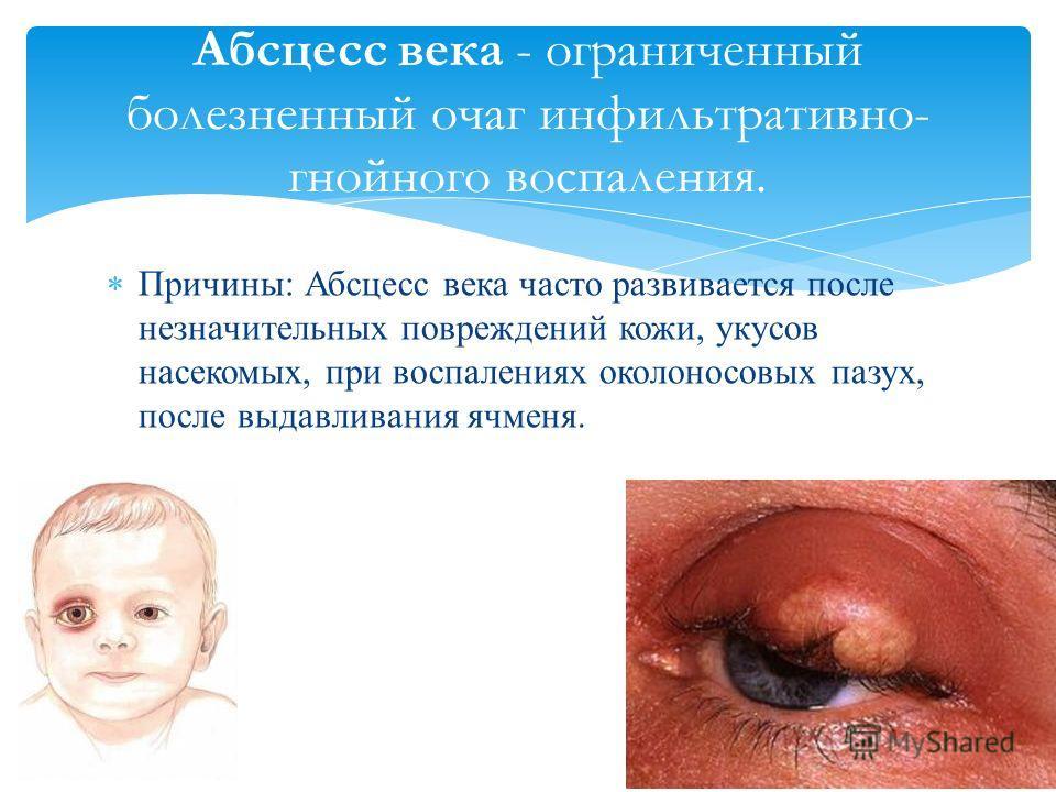 Причины: Абсцесс века часто развивается после незначительных повреждений кожи, укусов насекомых, при воспалениях околоносовых пазух, после выдавливания ячменя. Абсцесс века - ограниченный болезненный очаг инфильтративно- гнойного воспаления.