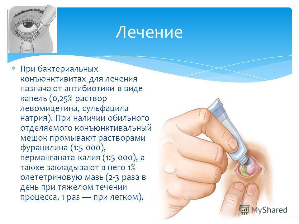 При бактериальных конъюнктивитах для лечения назначают антибиотики в виде капель (0,25% раствор левомицетина, сульфацила натрия). При наличии обильного отделяемого конъюнктивальный мешок промывают растворами фурацилина (1:5 000), перманганата калия (