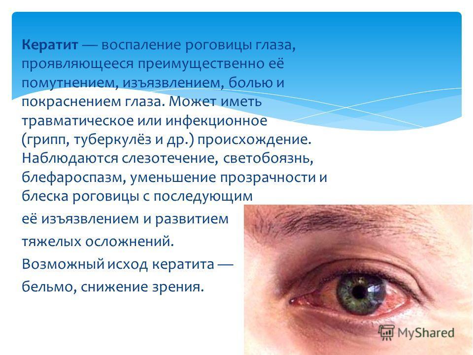 Кератит воспаление роговицы глаза, проявляющееся преимущественно её помутнением, изъязвлением, болью и покраснением глаза. Может иметь травматическое или инфекционное (грипп, туберкулёз и др.) происхождение. Наблюдаются слезотечение, светобоязна, бле