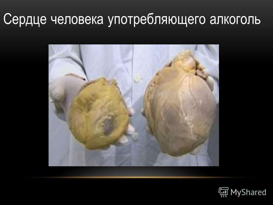 Сердце человека употребляющего алкоголь