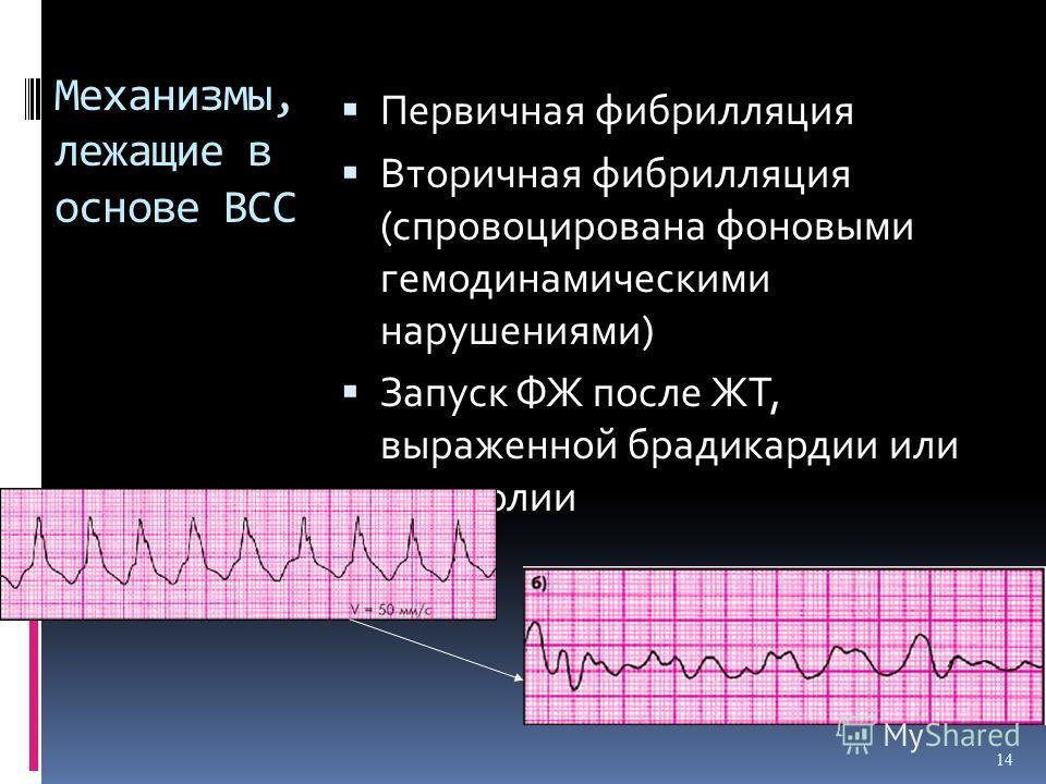 Механизмы, лежащие в основе ВСС Первичная фибрилляция Вторичная фибрилляция (спровоцирована фоновыми гемодинамическими нарушениями) Запуск ФЖ после ЖТ, выраженной брадикардии или асистолии 14