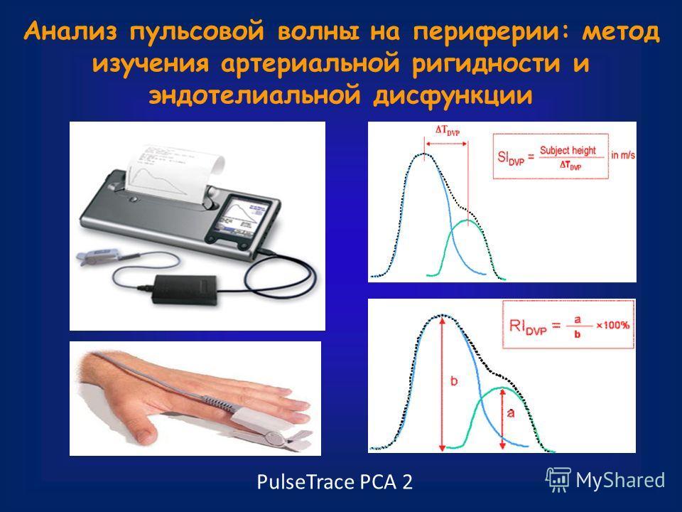Анализ пульсовой волны на периферии: метод изучения артериальной ригидности и эндотелиальной дисфункции PulseTrace РСА 2