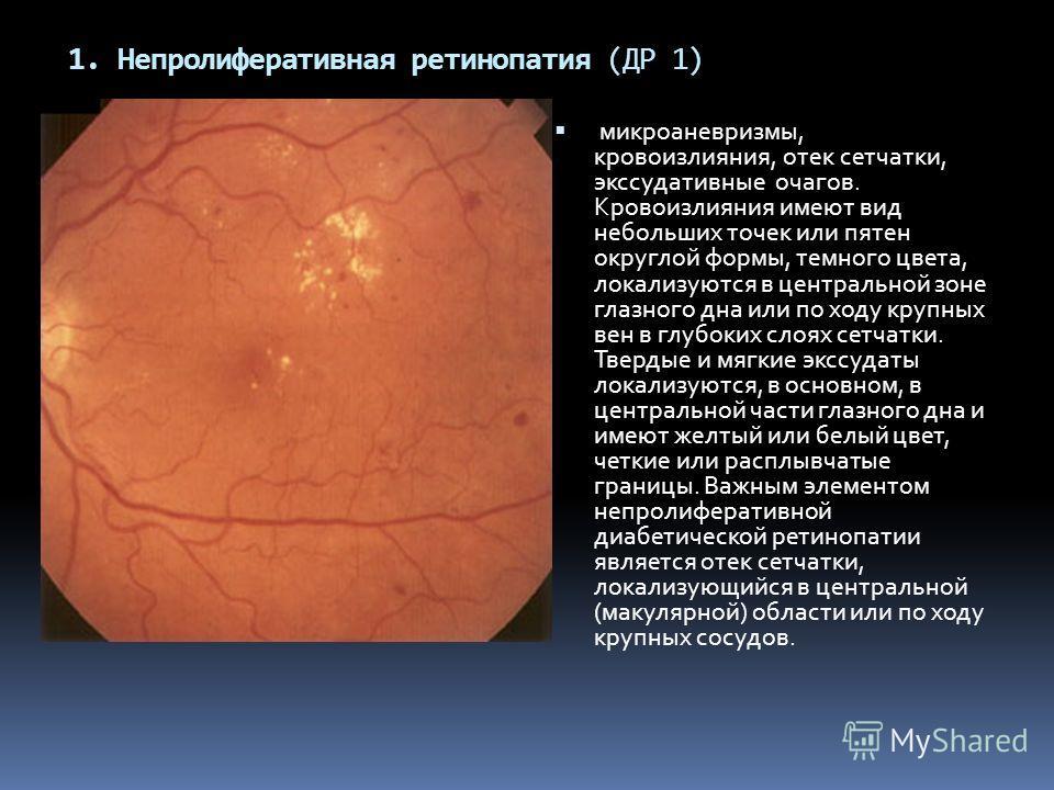 1. Непролиферативная ретинопатия (ДР 1) микроаневризмы, кровоизлияния, отек сетчатки, экссудативные очагов. Кровоизлияния имеют вид небольших точек или пятен округлой формы, темного цвета, локализуются в центральной зоне глазного дна или по ходу круп