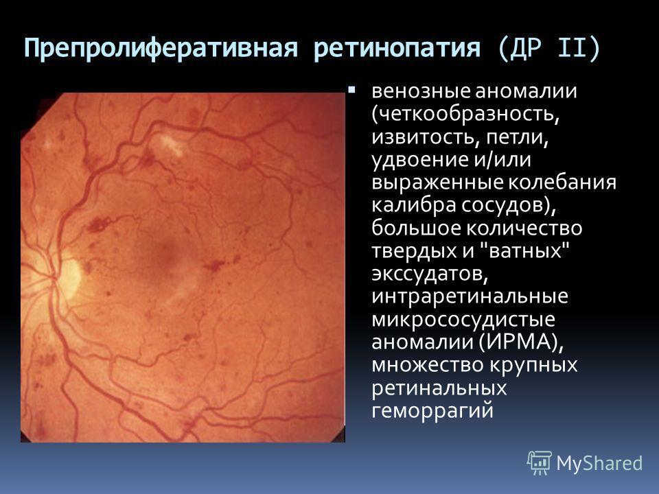 Препролиферативная ретинопатия (ДР II) венозные аномалии (четкообразность, извитость, петли, удвоение и/или выраженные колебания калибра сосудов), большое количество твердых и