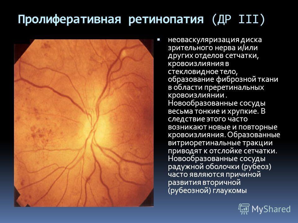 Пролиферативная ретинопатия (ДР III) неоваскуляризация диска зрительного нерва и/или других отделов сетчатки, кровоизлияния в стекловидное тело, образование фиброзной ткани в области преретинальных кровоизлиянии. Новообразованные сосуды весьма тонкие