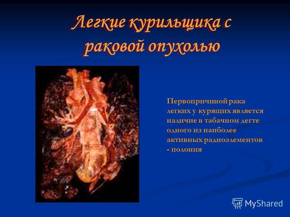 Первопричиной рака легких у курящих является наличие в табачном дегте одного из наиболее активных радиоэлементов - полония Легкие курильщика с раковой опухолью Легкие курильщика с раковой опухолью