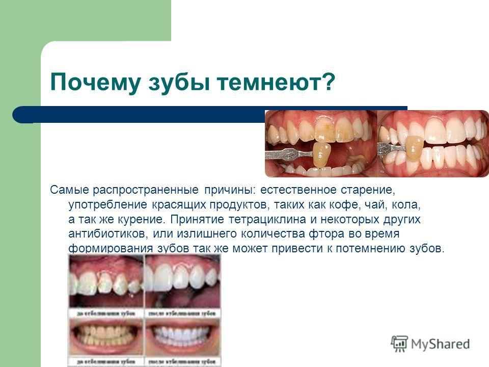 Почему зубы темнеют? Самые распространенные причины: естественное старение, употребление красящих продуктов, таких как кофе, чай, кола, а так же курение. Принятие тетрациклина и некоторых других антибиотиков, или излишнего количества фтора во время ф