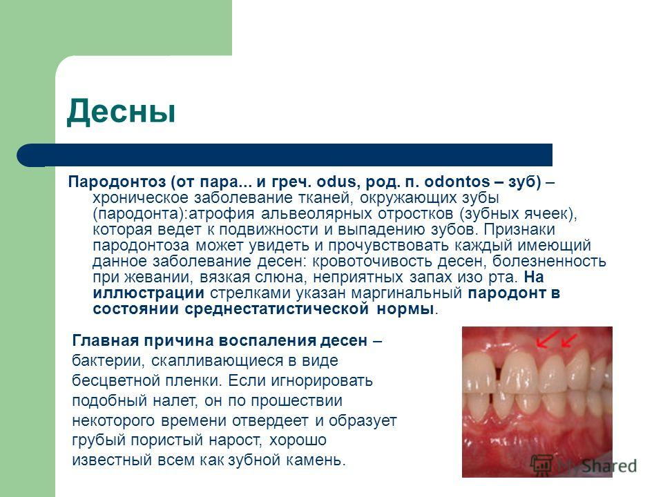 Десны Пародонтоз (от пара... и греч. odus, род. п. odontos – зуб) – хроническое заболевание тканей, окружающих зубы (пародонта):атрофия альвеолярных отростков (зубных ячеек), которая ведет к подвижности и выпадению зубов. Признаки пародонтоза может у