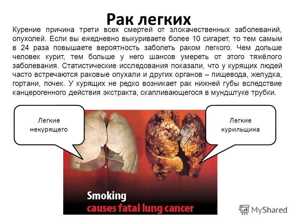 Рак легких Курение причина трети всех смертей от злокачественных заболеваний, опухолей. Если вы ежедневно выкуриваете более 10 сигарет, то тем самым в 24 раза повышаете вероятность заболеть раком легкого. Чем дольше человек курит, тем больше у него ш