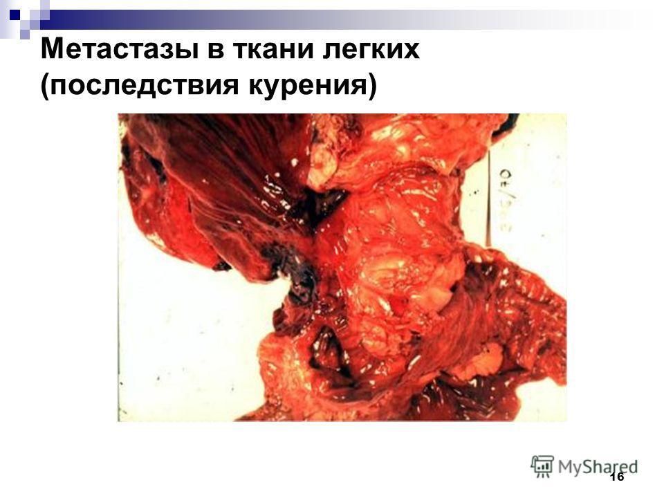 16 Метастазы в ткани легких (последствия курения)