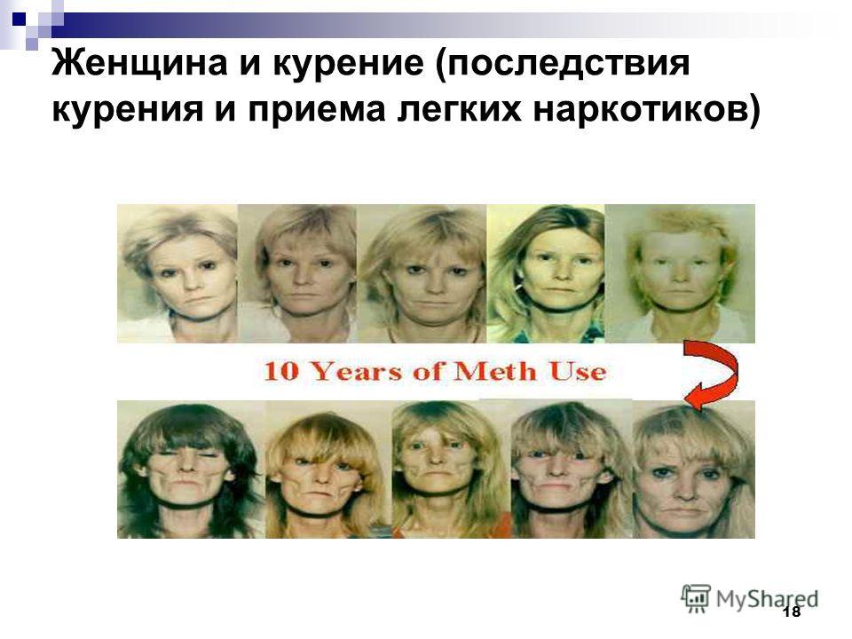 18 Женщина и курение (последствия курения и приема легких наркотиков)