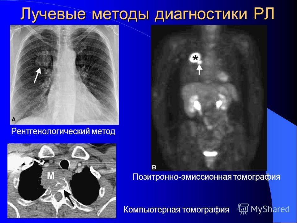 Лучевые методы диагностики РЛ Рентгенологический метод Позитронно-эмиссионная томография Компьютерная томография