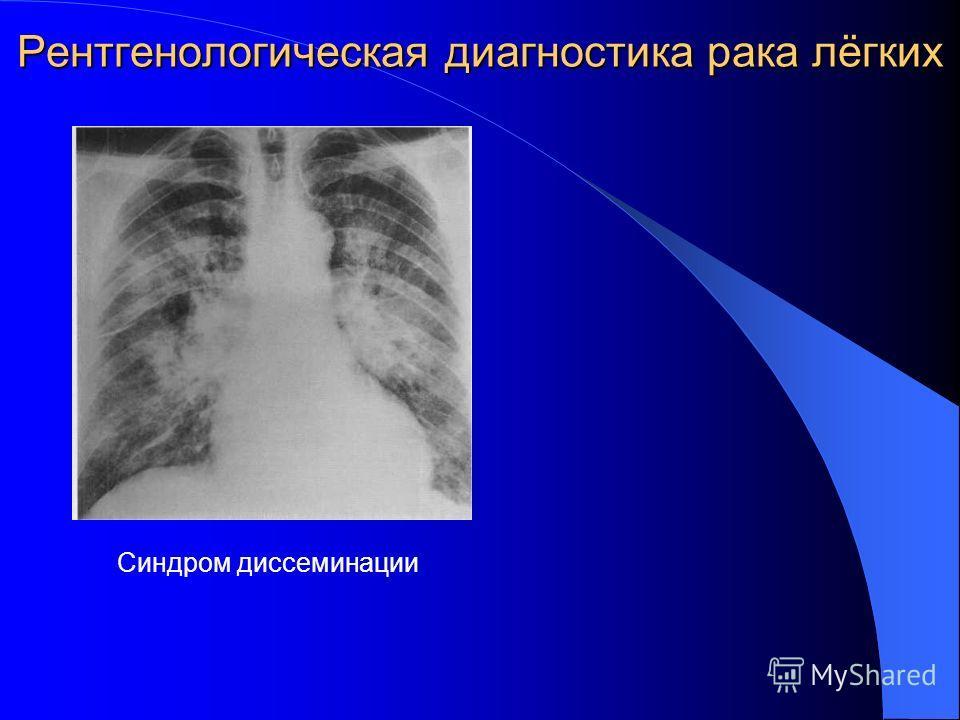 Рентгенологическая диагностика рака лёгких Синдром диссеминации