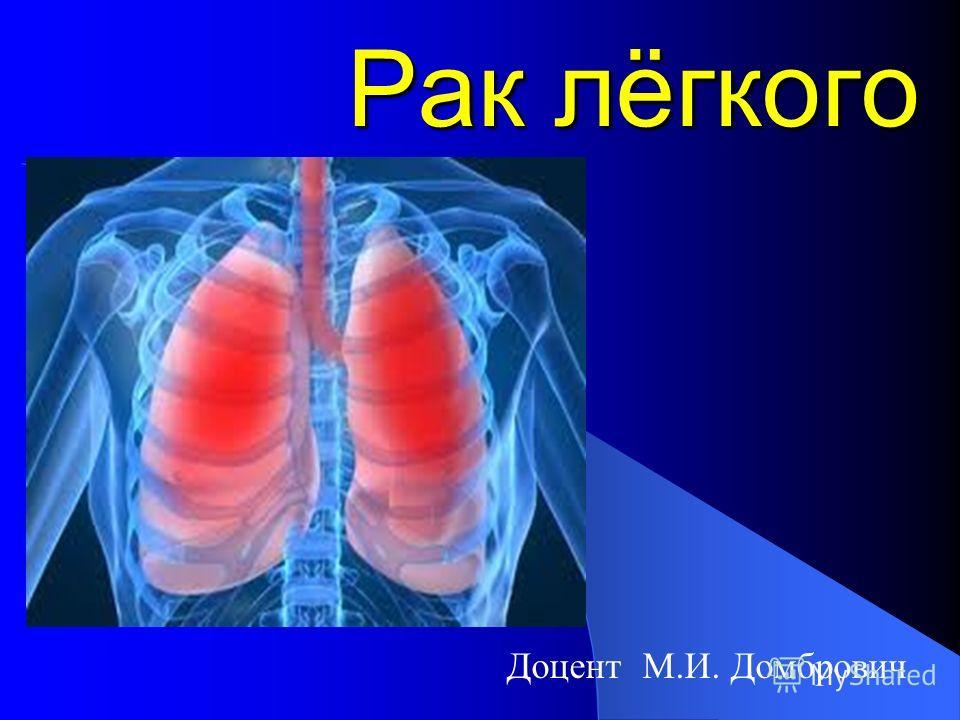 Рак лёгкого Доцент М.И. Домбрович