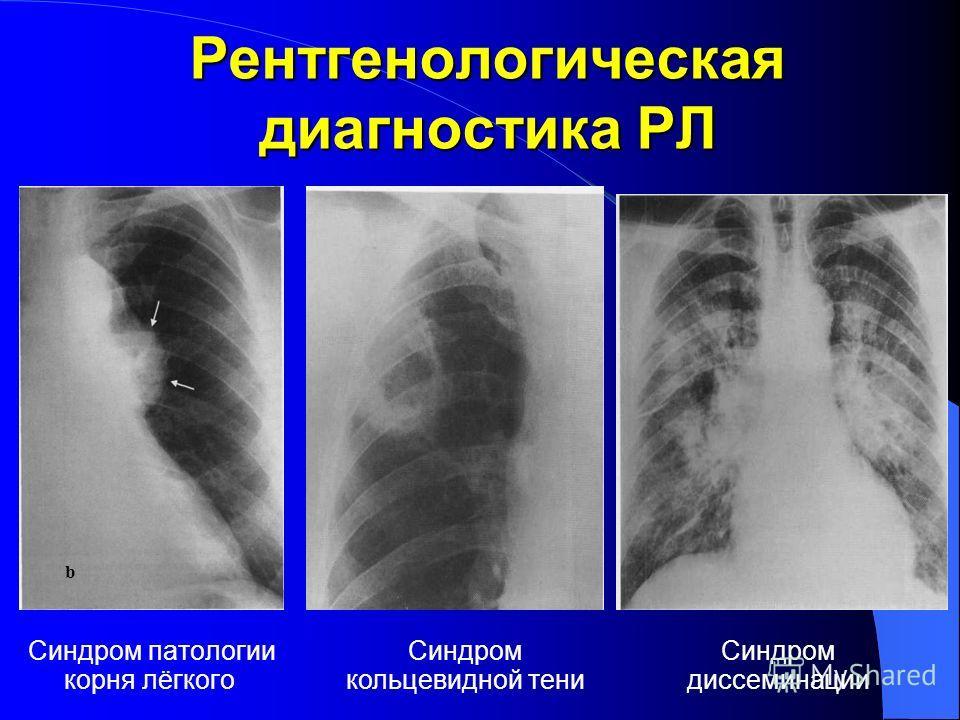 Рентгенологическая диагностика РЛ Синдром патологии корня лёгкого b Синдром кольцевидной тени Синдром диссеминации
