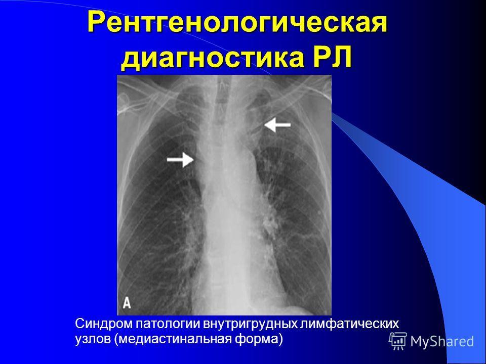 Рентгенологическая диагностика РЛ Синдром патологии внутригрудных лимфатических узлов (медиастинальная форма)