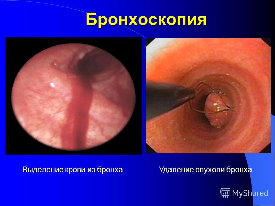 Бронхоскопия Выделение крови из бронха Удаление опухоли бронха