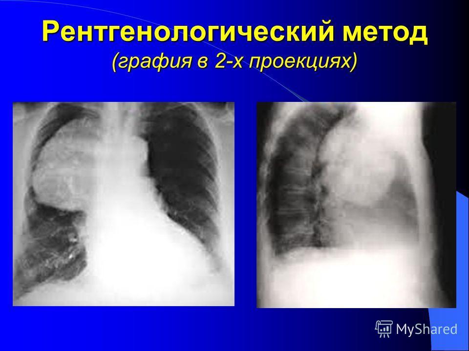 Рентгенологический метод (графия в 2-х проекциях)