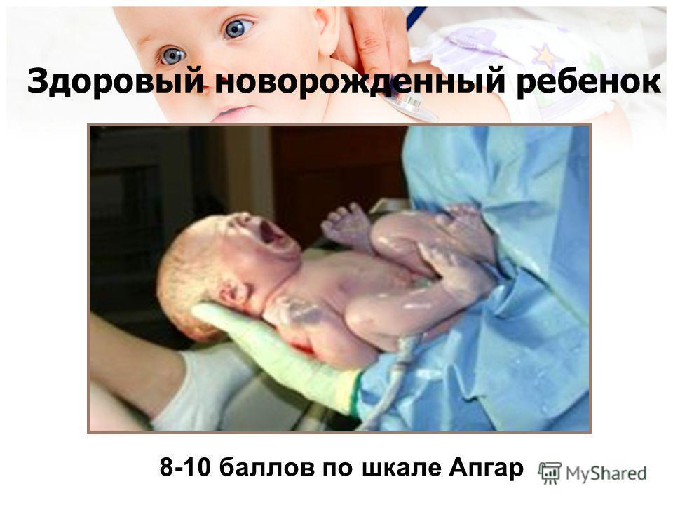 Здоровый новорожденный ребенок 8-10 баллов по шкале Апгар