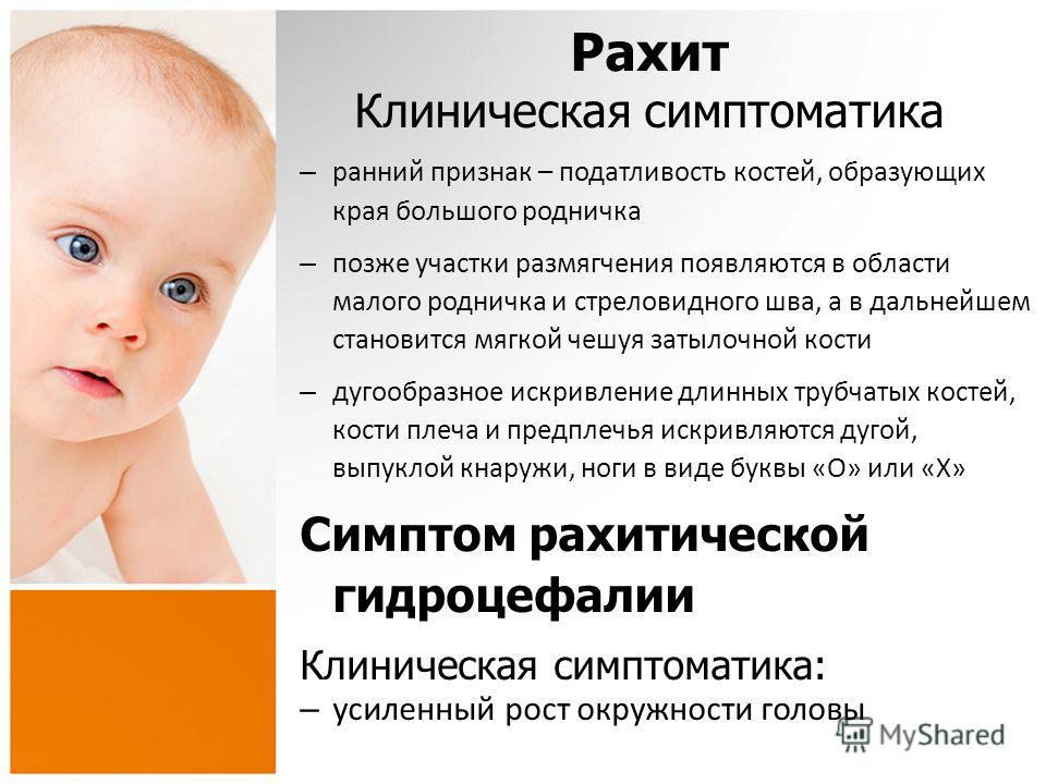 Рахит у детей до года схема
